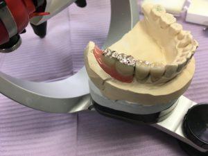 CSPリーゲルテレスコープ義歯/ノナカデンタルクリニック